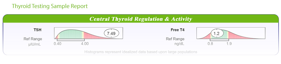 Natural Adrenal and Thyroid Testing Panel Sample